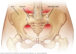 Sacroiliac joint disorders