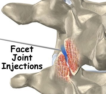 Facet Joint Injections Blocks