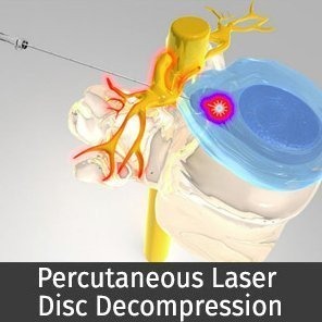 Laser Disc Surgery