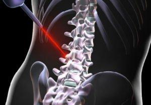 laser disc surgery Expert Specialist