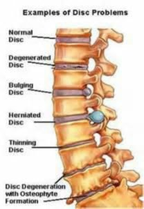 Spinal Disc Problems