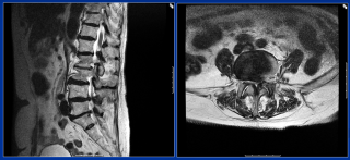 diagnostic Spinal Stenosis MRI