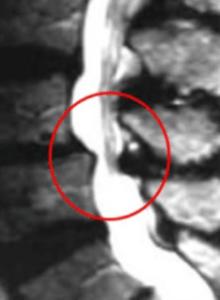 Spinal Stenosis MRI