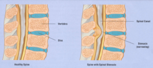 Narrowing of Spinal Canal