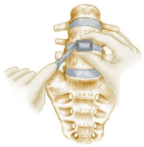 What is an ALIF Lumbar Fusion?
