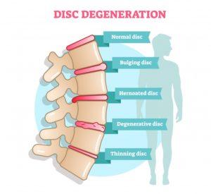 Intervertebral Disc Degeneration and Ageing