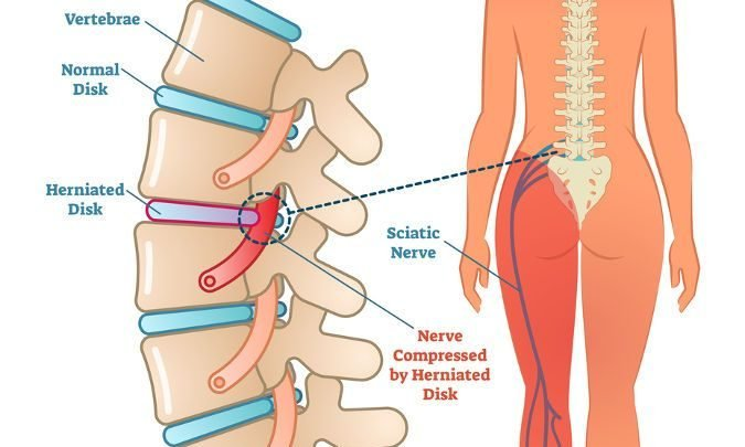Best Treatment For Sciatica Sciatica Medical Health